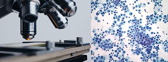 Primo piano di un microscopio accanto ad un'immagine di cellule